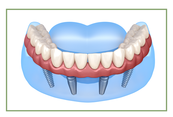 Non-Removable Dentures Supported by Implants