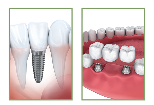 Conventional Implants for One or More Missing Teeth